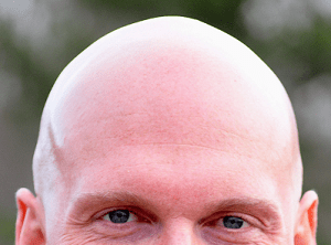 Bald Versus Non Bald The Challenges Of The Dome